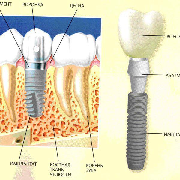 бизнес на отбеливание зубов на дому