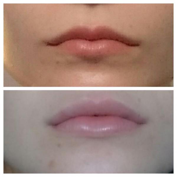 через 2 часа после процедуры, верхнюю губу мне хорошо подправили, прям как я и хотела :)