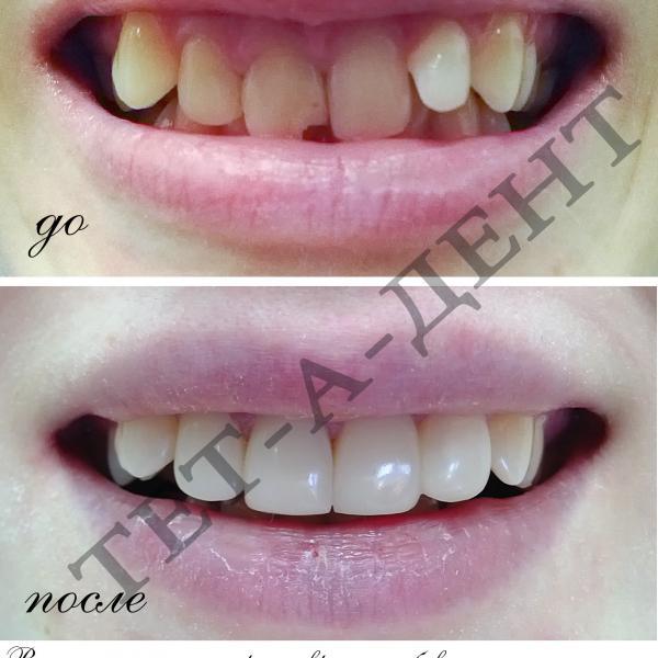 Высокоэстетичные реставрации зубов В ОДНО ПОСЕЩЕНИЕ !