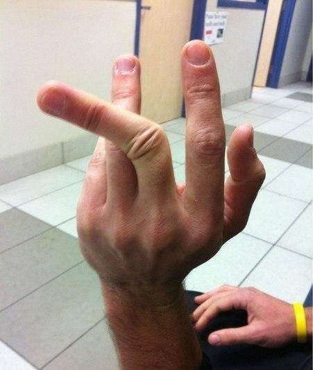 Сломанный палец смешная картинка, днем