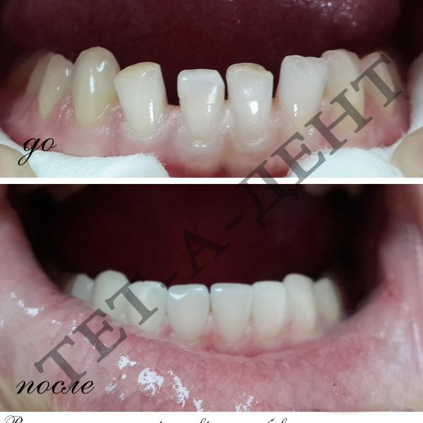 Высоэстетичные реставрации зубов В ОДНО ПОСЕЩЕНИЕ !