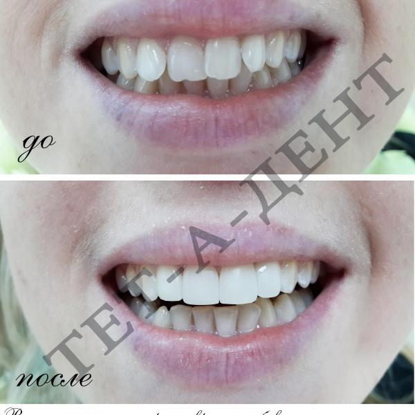 Высокоэстетичные реставрации зубов В ОДНО ПОСЕЩЕНИЕ ! Врач Томилко Наталия Юрьевна