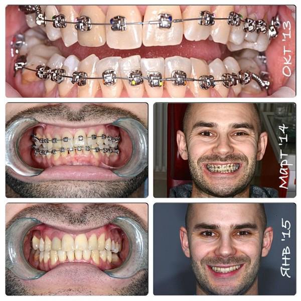 Зубной имплант нижневартовск