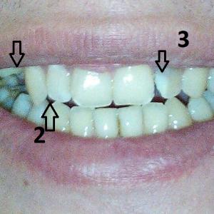 1- удаленные зубы, 2 запломбированные зубы (верхние) 3- Лечебная паста в зубном канале.