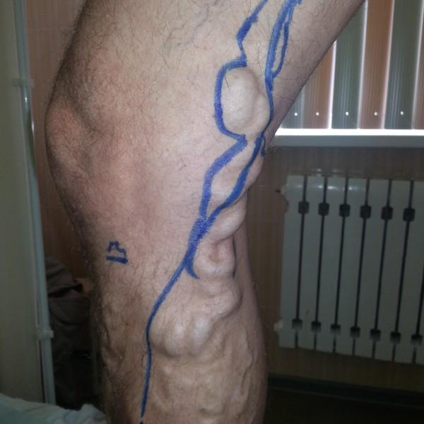 Вот что было до операции(врач сам фотаграфировал сравнивал). Сейчас не осталось и следа