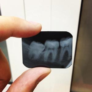 рентген зуба мудрости